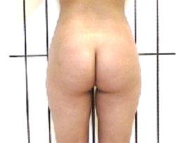 Zellulitis auf der Bikinizone